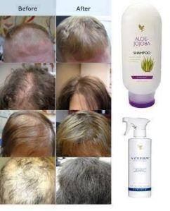 Aloe for hair growth