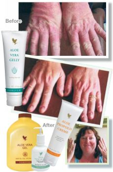 Skin care with Aloe